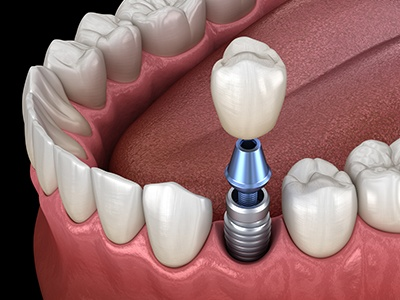 cost of dental implants in Colorado Springs
